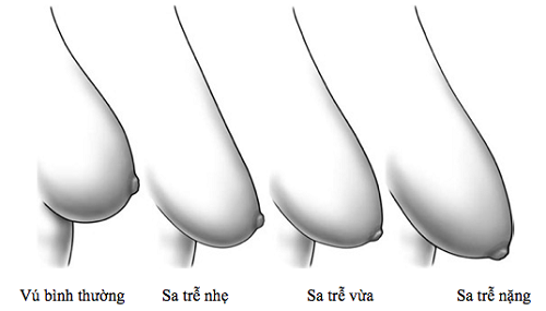 Mô phỏng các mức độ chảy xệ của ngực