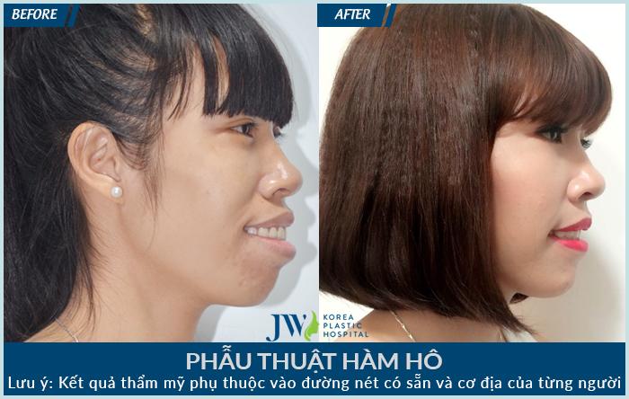 Hình ảnh của chị Thúy trước và sau khi phẫu thuật