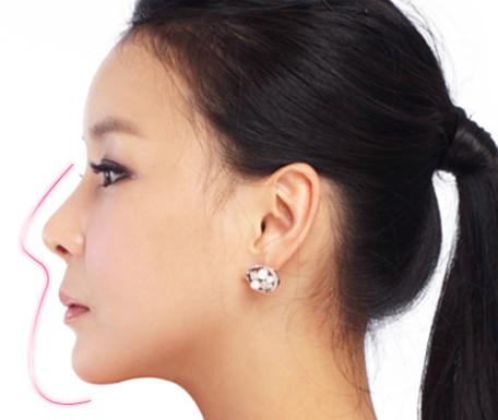 Dáng mũi S line chuẩn Hàn khi thực hiện phương pháp nâng mũi