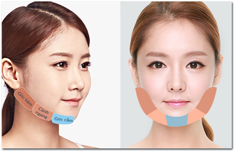Kỹ thuật gọt mặt sẽ tác động trực tiếp vào các phần xương hàm mặt