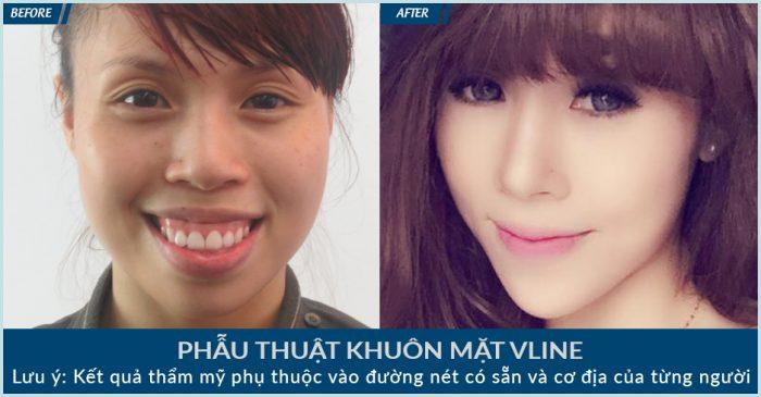 Gương mặt Lan Nhi đã trở nên thon gọn và ấn tượng hơn sau khi gọt mặt V line tại JW