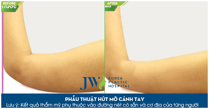 Khách hàng thực hiện hút mỡ bắp tay tại JW