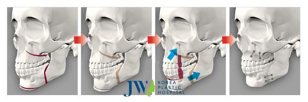 Mô phỏng các bước quan trọng khi thực hiện phẫu thuật hàm hô