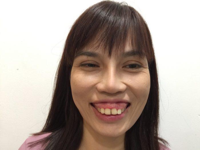 Hoài Như trước khi phẫu thuật hàm hô với hàm răng hô quá khổ và cười hở lợi nặng