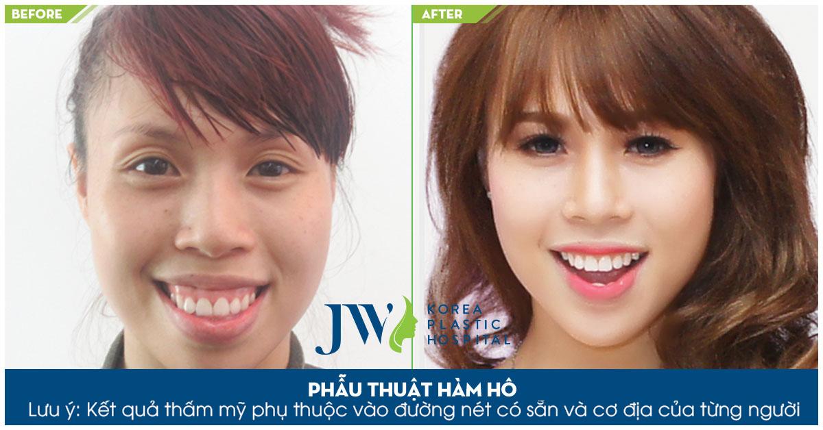 Lan Nhi được cải thiện hình dáng khuôn mặt sau khi Phẫu thuật hàm hô Bác sĩ Tú Dung Bệnh Viện Thẩm mỹ JW Hàn Quốc