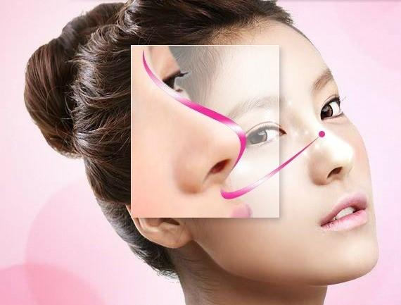 Có nhiều cách để cải thiện dáng mũi, tuy nhiên việc lựa chọn ra phương pháp an toàn mới là điều quan trọng.