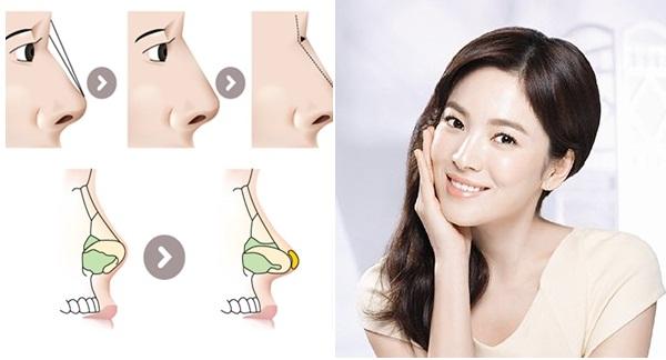 Nâng mũi Hàn Quốc mang đến dáng mũi cao ấn tượng và tự nhiên cho khách hàng thẩm mỹ