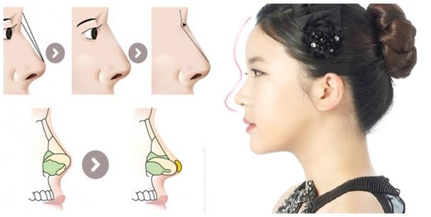 Mũi S line vẫn là nữ hoàng độc tôn cho dáng mũi đẹp và an toàn