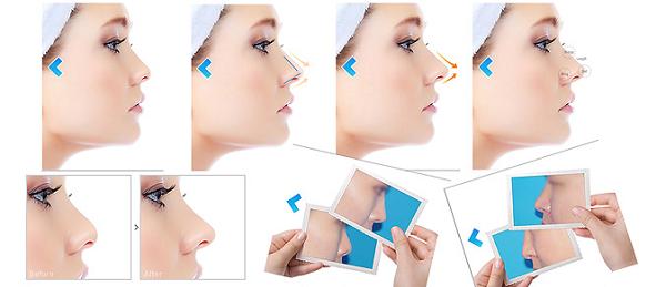 Công nghệ nâng mũi S line 3D mang đến dáng mũi hoàn hảo cho khách hàng