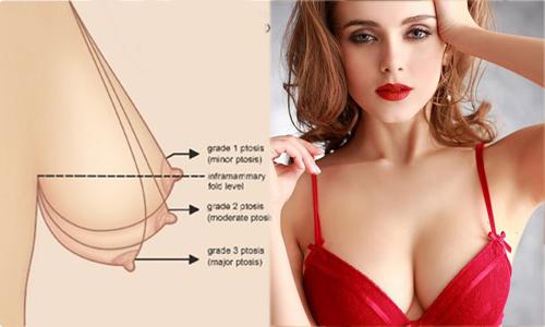 nâng ngực chảy xệ bằng phương pháp nào tốt