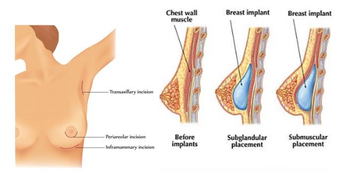 Mô phỏng quá trình nâng ngực chảy xệ bằng phương pháp nội soi hiện đại