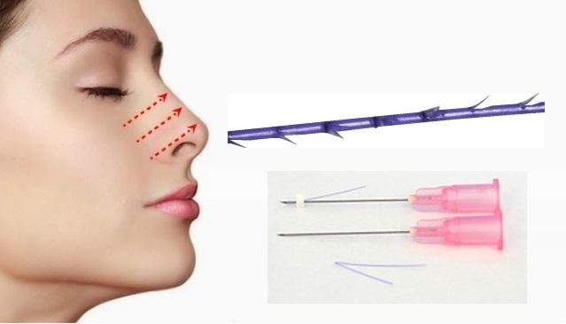 kỹ thuật thu gọn cánh mũi không phẫu thuật