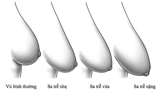 Những mức độ sa trễ trong nâng ngực mà khách hàng cần biết