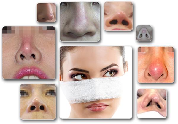 Những biến chứng không mong muốn khi thực hiện nâng mũi không phẫu thuật ở địa điểm kém chất lượng