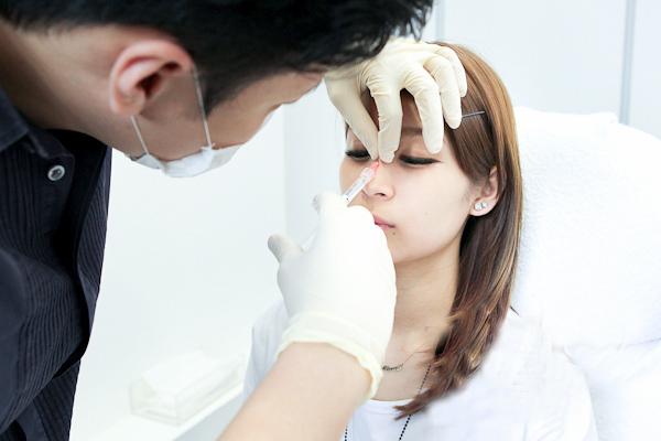 nhược điểm của nâng mũi không phẫu thuật