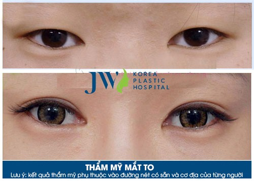 Phẫu Thuật Thẩm Mỹ Mắt To Hơn kết hợp tạo mắt hai mí tự nhiên tại Bệnh viện JW