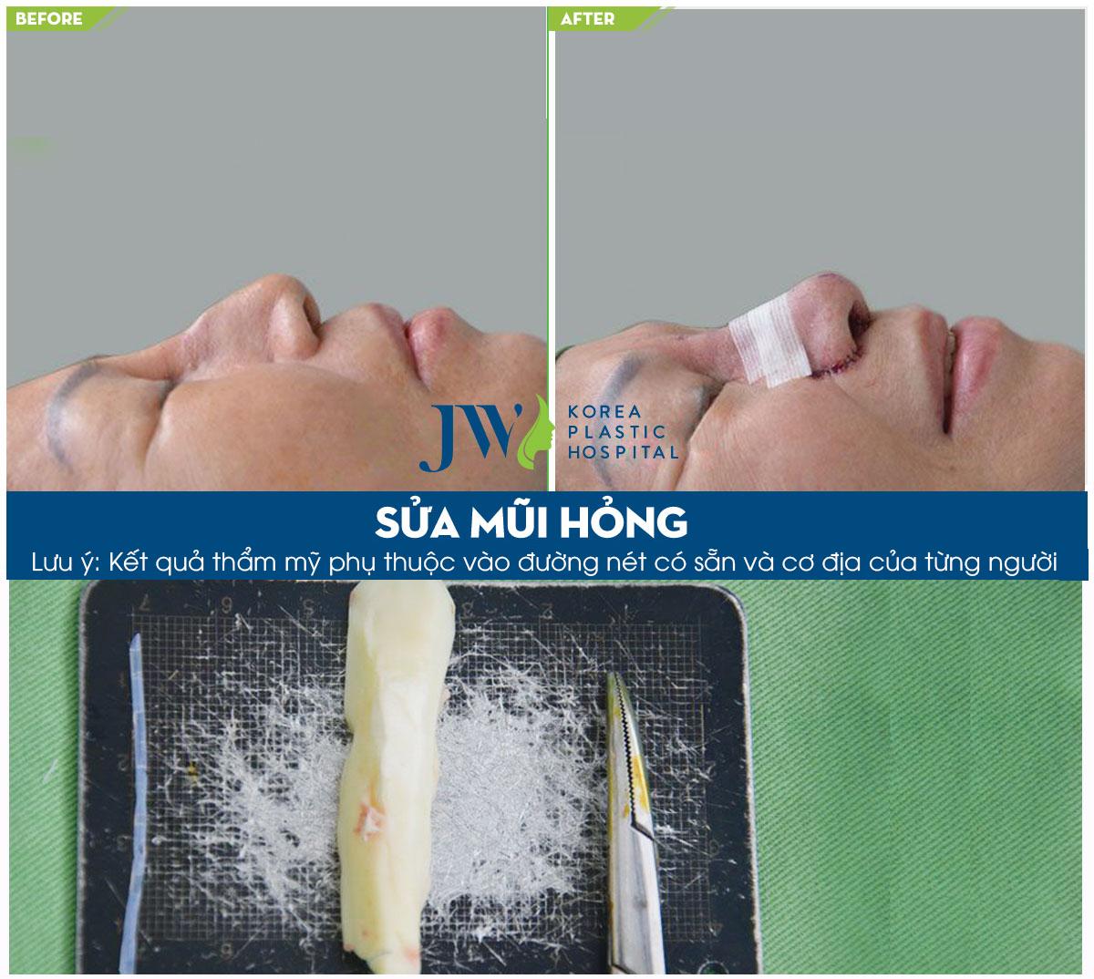 Một Bệnh nhân phẫu thuật chỉnh sửa mũi hỏng do dùng vật liệu không an toàn được bác sĩ tại JW tái phẫu thuật mũi lại.