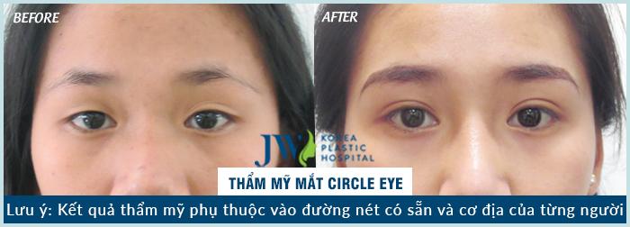 cắt mí mắt Circle Eye là gì