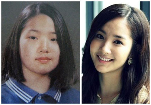 Park Min Young phẫu thuật thẩm mỹ - Đẹp lay động lòng người_1
