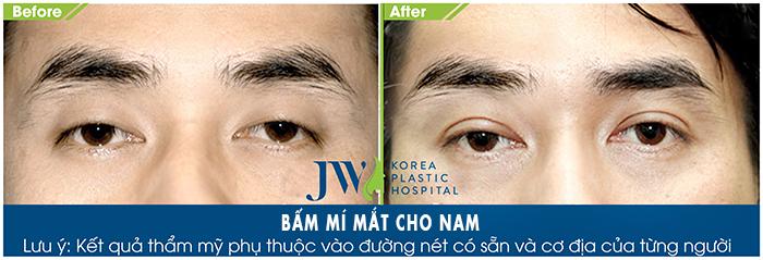 """Bấm mí Hàn Quốc cho nam mắt đẹp long lanh chuẩn """"soái ca""""_3"""