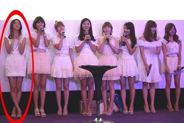Rộ tin đồn Yoona phẫu thuật thẩm mỹ_7