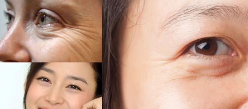 Bạn đang quan tâm có nên lấy mỡ bọng mắt?_5