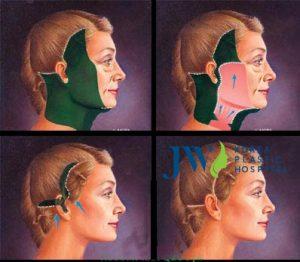 Công nghệ căng da mặt Smas là gì? Đối tượng được chỉ định thực hiện_1