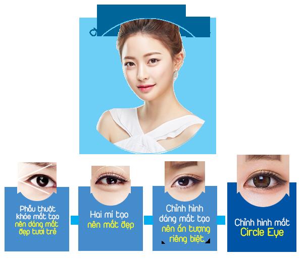 Phẫu thuật thẩm mỹ cắt mí mắt Circle Eye là gì