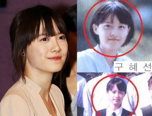 Goo Hye Sun phẫu thuật thẩm mỹ phải chăng là thật?_1