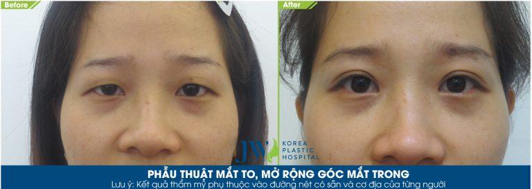 phẫu-thuật-mắt-to-mở-rộng-góc-mắt-trong-768x273