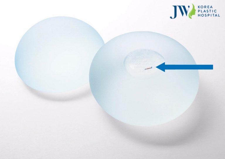 Vì sao nên nâng ngực nội soi tại bệnh viện thẩm mỹ JW Hàn Quốc?_3