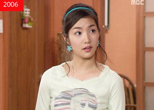 Park Min Young phẫu thuật thẩm mỹ - Đẹp lay động lòng người_2