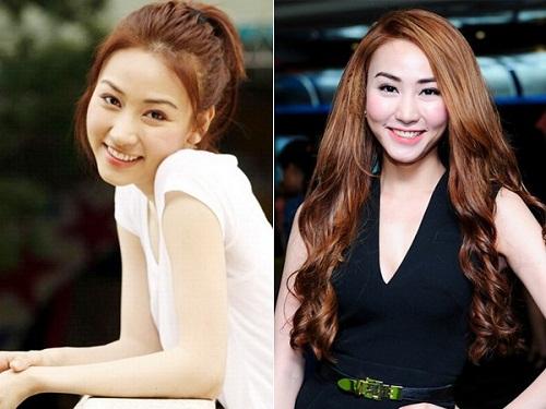 Nghi vấn diễn viên Ngân Khánh thực hiện phẫu thuật thẩm mỹ_1