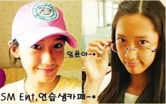 Rộ tin đồn Yoona phẫu thuật thẩm mỹ_1