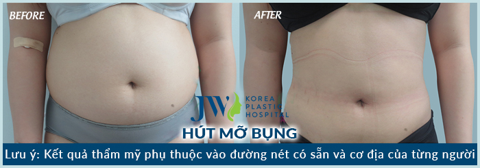 hut-mo-bung-tai-tp.hcm-5