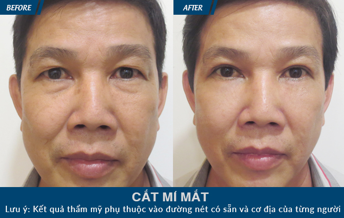 cat-mi-mat-1