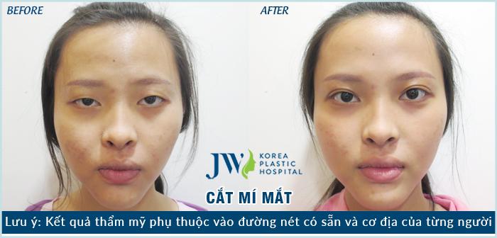 cat-mi-mat-12