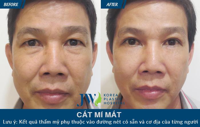 cat-mi-mat-6 (1)