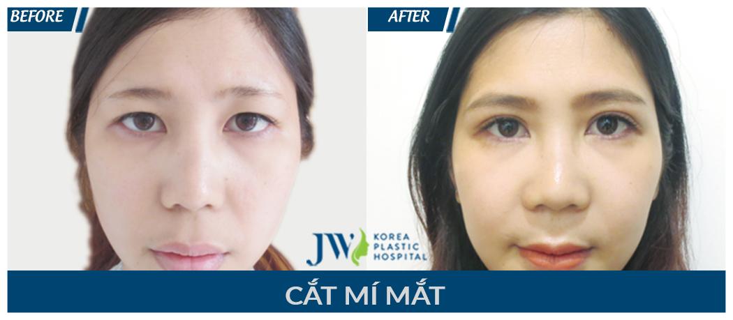 cat-mi-mat-9