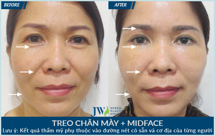 treo chan may - midface-ng-thi-be-thu