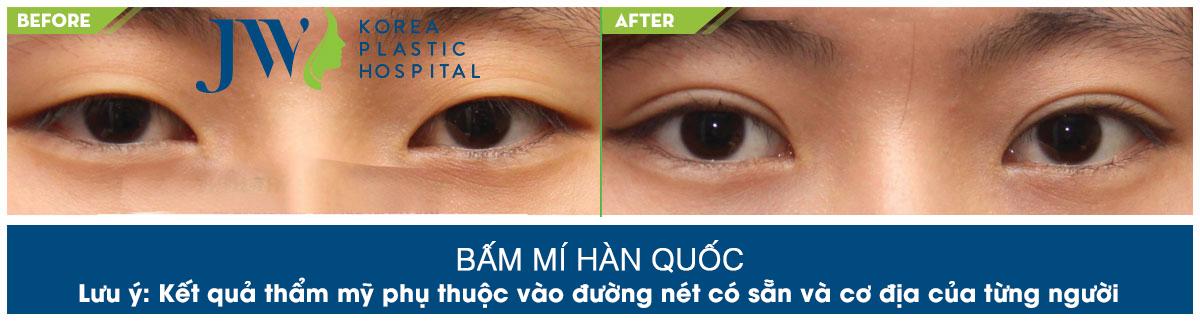 bam-mi-han-quoc2