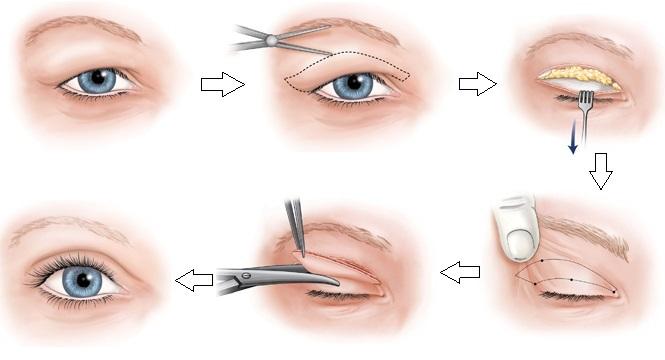 lấy-mỡ-mí-mắt-bằng-laser-4