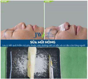 sua-mui-hong-1
