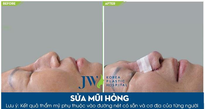 phẫu-thuật-lấy-silicon-mũi-6