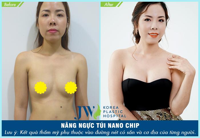 nâng-ngực-ở-đâu-tốt-nhất-hà-nội-9