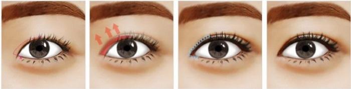 phẫu-thuật-thẩm-mỹ-mắt-ở-đâu-đẹp-3