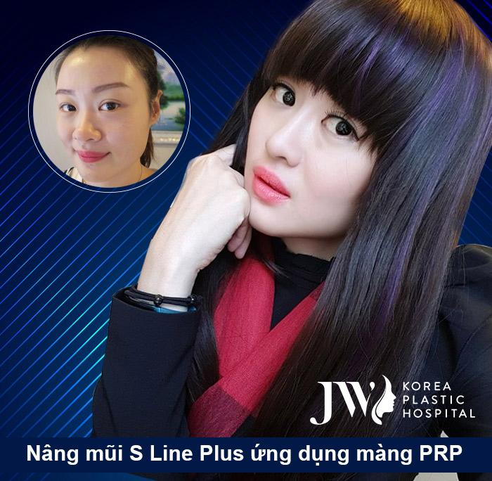 Lean Yee Lin