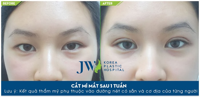 lưu-ý-khi-cắt-mí-mắt-6