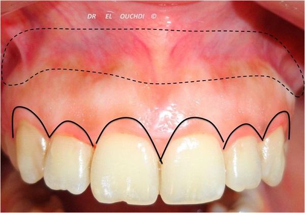 niềng-răng-có-chữa-cười-hở-lợi-hiệu-quả-không-3