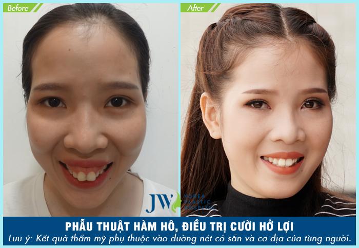 niềng-răng-có-chữa-cười-hở-lợi-hiệu-quả-không-8